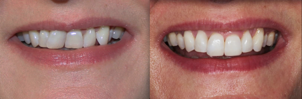 Clear Aligners Pic 1 1024x336